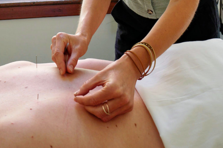 The 3 best acupuncture spots in Portland